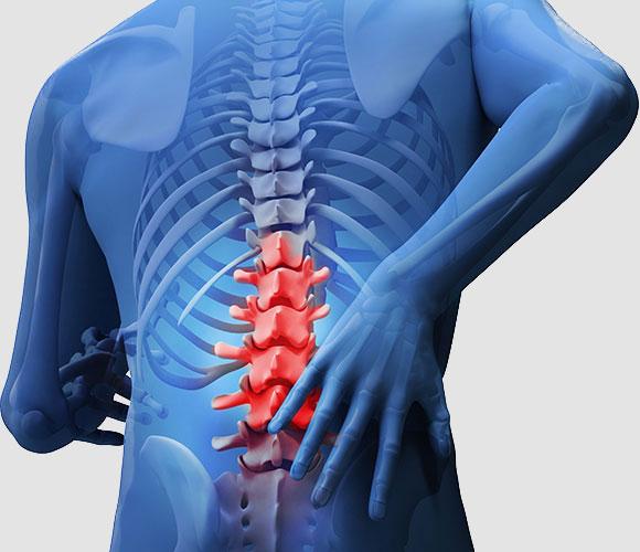 Gordon Chiropractic Lumbar Pain